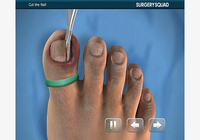 Ingrown Toenail Removal pour iOS